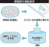 凍結胚を使った不妊治療